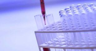 Stoffwechselanalyse - Abnehmen dank genauer Daten